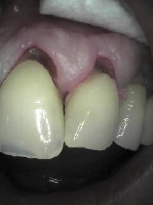 Před ošetřením (before treatment)