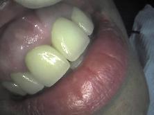Po ošetření (after treatment)